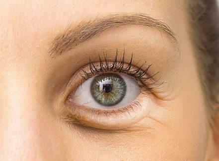 pressoterapia-occhi-centro-estetico-roma